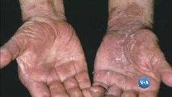 Angola entre os 22 países com mais doentes de lepra (atenção imagens susceptíveis de chocar)