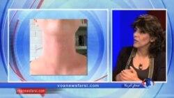 درمان موفق اگزما با داروی شناخته شده آرتریت روماتوئید