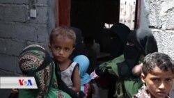 Bandorên Xirab yên Kêmxwarinê li Yemenê