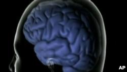 Medicinas sin recetas podrían aumentar el riesgo de demencia y Alzheimer.