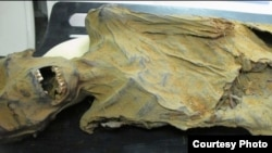This mummy is Ahmose Meyret Amon, an Egyptian princess who was between 40 and 45 years when she died. She lived about 1580–1550 BCE and was found near modern day Luxor. (The Lancet)