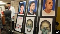Bác sĩ Eduardo Rodriguez nói chuyện với các ký giả về cuộc phẫu thuật ghép mặt cho anh Richard Norris. Các ảnh bên phải là hình của anh Norris trước và sau cuộc phẫu thuật