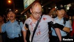 3일 중국의 홍콩 행정장관 선거안에 반대하는 반정부 시위에 참가한 한 청년이 친중 성향의 시위대 난입으로 부상을 당한 가운데, 경찰의 부축을 받고 있다.