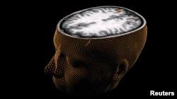 Изображение человеческого мозга, полученное при помощи сканирования (архивное фото)