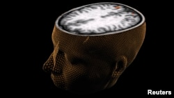 The human brain is seen with scanning technology. (Reuters)