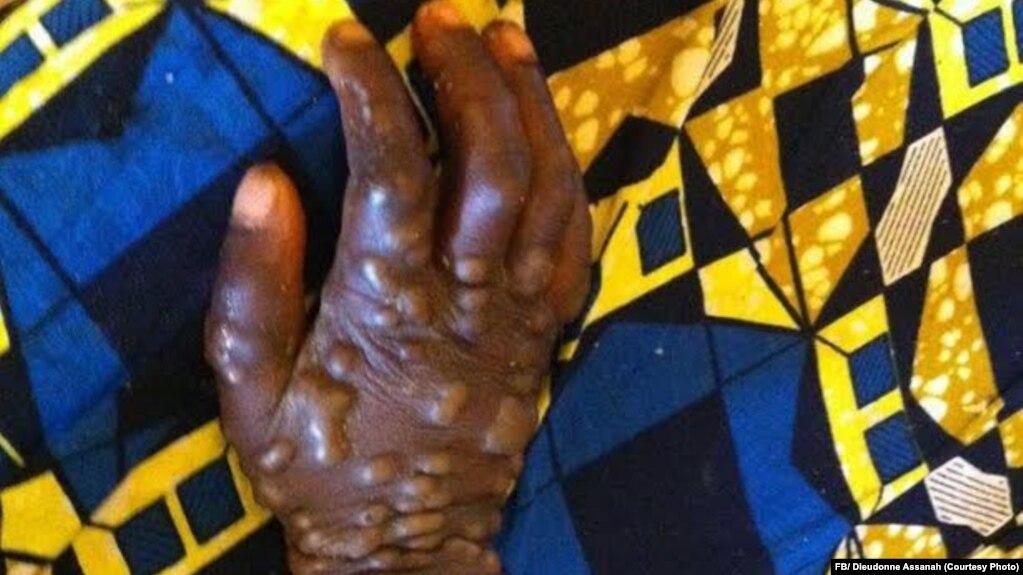 Centrafrique : épidémie de variole du singe dans l'est du pays