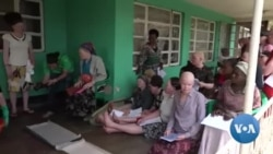 Women Living With Albinism Struggle to Find a Good Job