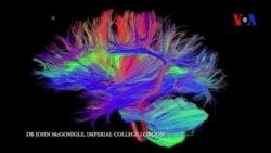Científicos estudian la edad cerebral