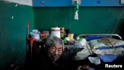 一名患矽肺病的老矿工在安徽省一家医院接受治疗。(资料照片)