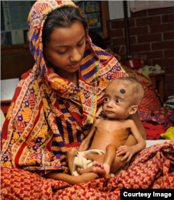 A Bangladeshi mother holds her child, who was treated for malnutrition at the International Centre for Diarrhoel Disease Research in Dhaka.(Photo by Rabiul Hasan/International Centre For Diarrhoeal Disease Research)