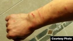 中國著名人權活動家胡佳下週剝奪政治權利期滿前遭到便衣警察毆打 ﹐手部見明顯傷痕。(圖片由胡佳提供)
