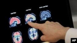 El insomnio o pocas horas de sueño está relacionado al aumento de posibilidad de padecer Alzheimer, según investigaciones recientes, y los hispanos son más propensos a padecerlo.