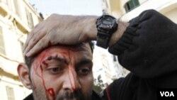 La violencia de que son víctimas los periodistas sigue siendo un serio problema al algunos países.