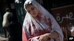 A Sep. 20, 2012 photo shows a wounded woman still in shock leaves Dar El Shifa hospital in Aleppo, Syria.