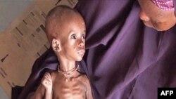 Trẻ em bị suy dinh dưỡng trầm trọng ở Somalia