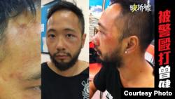 Hình ảnh ông Tsang thân thể bị bầm tím tại sở cảnh sát.