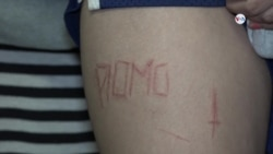 Manifestantes nicaragüenses marcadas en la piel con frase del partido de gobierno