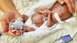 Quiz - Artificial Womb May Help Smallest Babies