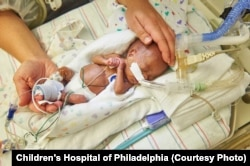 FILE: A premature baby at Children's Hospital in Philadelphia, PA. (Credit Children's Hospital of Philadelphia)
