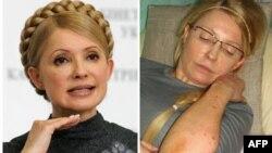 Julija Timošenko iz vremena kada je bila prmijerka (levo) i u bolnici, gde pokazuje modrice za koje tvrdi da su joj naneli zatvorski čuvari