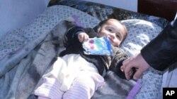 미 국제개발처가 지원한 의료 계획에 따라 치료를 받고 있는 아프간 아기.