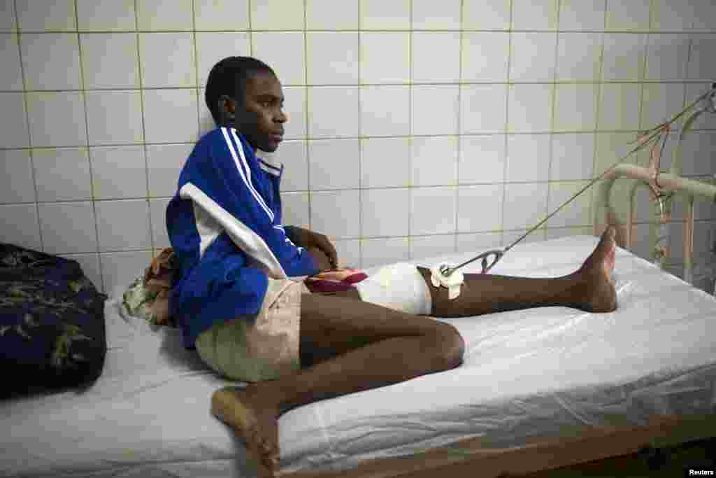 Issaka Hamidou, 16, recovers in an hospital from a stray bullet wound inflicted during the continuing sectarian violence in Bangui, Feb. 3, 2014.