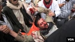 Para demonstran di Sana'a menggotong seorang rekan mereka yang terluka akibat tembakan aparat, Jumat (18/3).