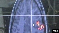 Penelitian pada otak untuk penyakit Alzheimer atau pikun.