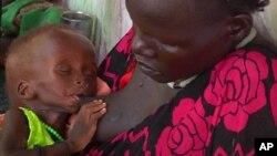 Un enfant souffrant de malnutrition et sa mère dans un hopital de Médecins sans frontières, à Leer, au Soudan du Sud, le 13 mai 2014.