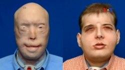 Phẫu thuật ghép mặt cho người lính cứu hỏa