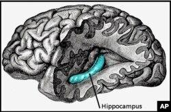 Hippocampus ຊຶ່ງເປັນກ້ອນສີແດງ ຢູ່ພາກສ່ວນນຶ່ງຂອງສະໝອງ ເປັນຜູ້ຄວບຄຸມຄວາມຈໍາ ແລະອາດຈະໄດ້ຮັບຜົນກະທົບຈາກ Stroke ນຳດ້ວຍ