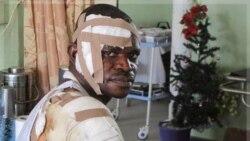 یکی از زخمی شدگان در انفجار کلیسای کاتولیک سنت ترزا در ابوجا پایتخت نیجریه. ۸ دی ماه ۱۳۹۰ (۲۹ دسامبر ۲۰۱۱)