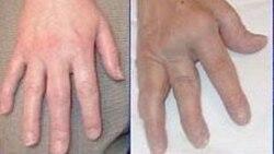 Hỏi đáp Y học: Chứng khớp ngón tay co rút buổi sáng