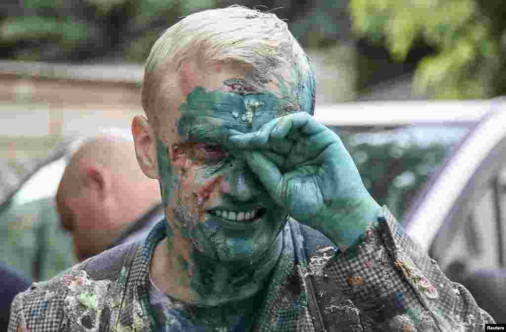 Vitaliy Shabunin, head of the non-governmental Anti-Corruption Action Center, reacts after he was splashed with a green substance during a rally in front of the Specialized Anti-Corruption Prosecutor's Office in Kyiv, Ukraine.