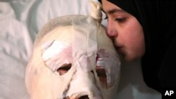 Fatima, 13, weeps as she kisses her injured father, Ahmad al-Messmar, 40, who was wounded when a deadly car bomb blew up Saturday evening near a gas station, in the predominately Shiite town of Hermel, Sunday, Feb. 2, 2014.