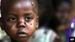 A starving child is covered with flies at the pediatric malnutrition ward at the Lilongwe Central Hospital, Malawi. (file photo)