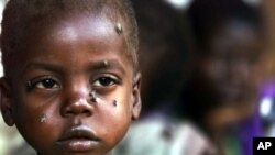 A starving child is covered with flies at the pediatric malnutrition ward at the Lilongwe Central Hospital, Malawi, April 24, 2002.