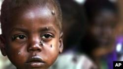 Un simple antibiotique a aidé à sauver des enfants du Malawi, tel que ce tout-petit, de la malnutrition aiguë sévère
