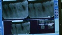 牙医用钻的日子有望成为过去