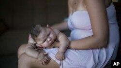 一名巴西女士手抱患上茲卡病毒女兒。