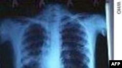 Tüberküloz Hastalığına Karşı Amansız Mücadele