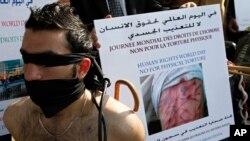 تصویر یک مظاهره کننده از شکنجه حکومت اسد با توقیف شدگان