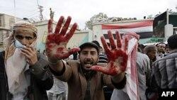 Một người biểu tình chống chính phủ giơ bàn tay dính đầy máu sau vụ đụng độ với lực lượng an ninh Yemen tại Sana'a, ngày 18/9/2011