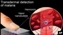 Un scanner au laser (AP)
