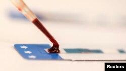 FILE - Nurse tests blood sample during free HIV testing clinic in Bangkok, Thailand.