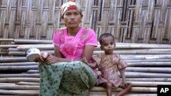 រូបឯកសារ៖ កុមារឈ្មោះ Rosmaida Bibi ដែលទទួលរងផលប៉ះពាល់ដោយសារតែកង្វះអាហារូបត្ថម្ភអង្គុយនៅជិតម្តាយឈ្មោះ Hamida Begum នៅជំរំបណ្តោះអាសន្ននៅជំរំ Dar Paing ខាងជើងទីក្រុង Sittwe រដ្ឋ Rakhine ប្រទេសមីយ៉ាន់ម៉ា។