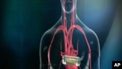 งานวิจัยระบุว่า มลพิษทางอากาศมีความเกี่ยวโยงกับโรคหัวใจ และเส้นโลหิตอุดตัน