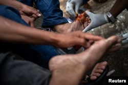 Migrants receive medical attention for blisters in theTapachula city center, Mexico, Oct. 21, 2018.