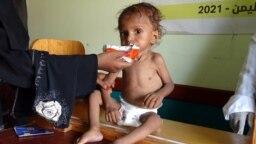 Seorang perempuan Yaman memberi makan seorang anak yang menderita malnutrisi di sebuah klinik di Provinsi Hodeidah, yang dilanda perang, 7 Agustus 2021.