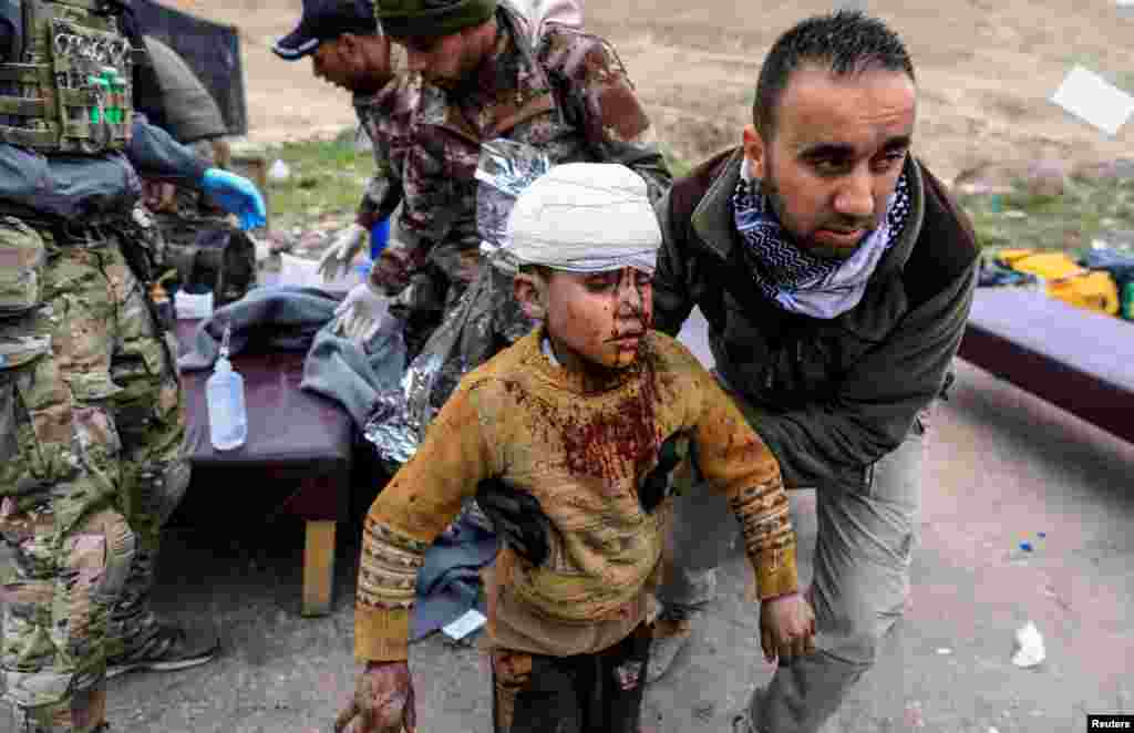 A boy injured in a mortar attack walks toward an ambulance after being treated by medics in a field clinic as Iraqi forces battle with Islamic State militants, in western Mosul.